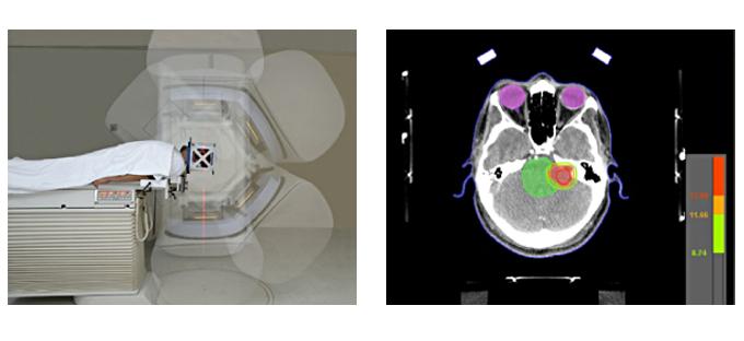 Neuroespacio radiocirugia_1 Radiocirugía estereotáctica