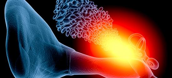 Neuroespacio meniere-03 Enfermedad de Ménière Padecimientos